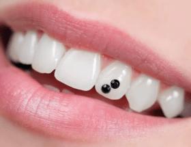 Украшения на зубы: интересные решения для любителей оригинальных изделий