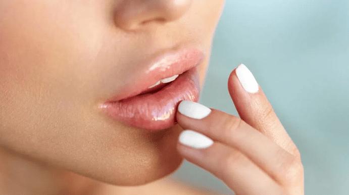 Небольшие белые пятнышки на губах часто появляются при болезни Фордайса